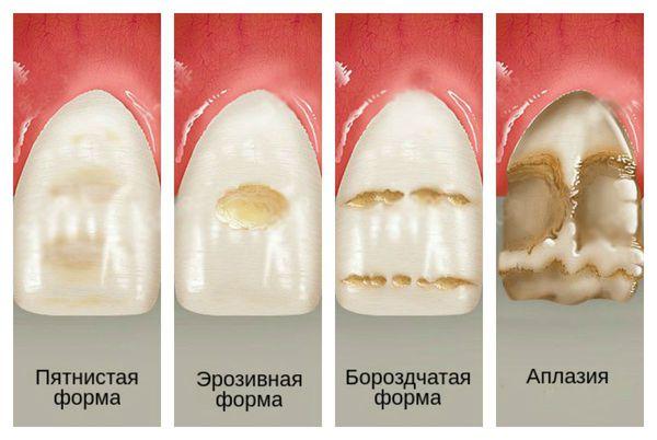Клинические формы гипоплазии