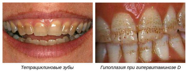 Медикаментозные виды гипоплазии зубов