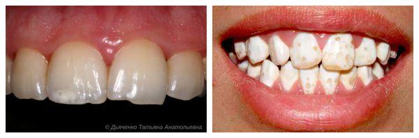 Меловидная гипоплазия (слева) и частичное отсутствие эмали (справа)