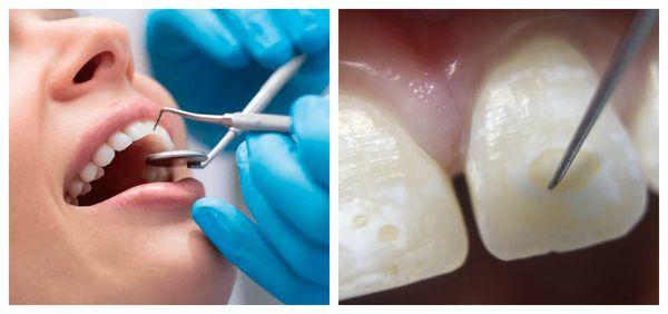 Зондирование гипоплазированного зуба