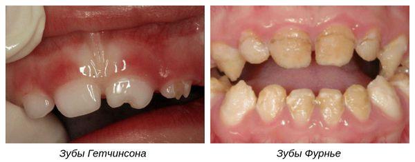Зубы Гетчинсона и Фурнье