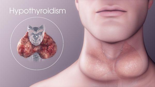 Изменение щитовидной железы при гипотиреозе
