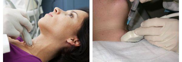 УЗИ и пункционная биопсия щитовидной железы