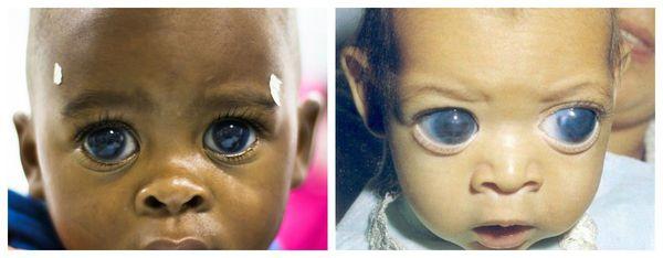 """""""Кукольные глаза"""" у детей с врождённой глаукомой"""