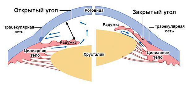 Открыто- и закрытоугольная глаукома