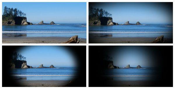 Постепенное выпадение полей зрения по глаукомному типу