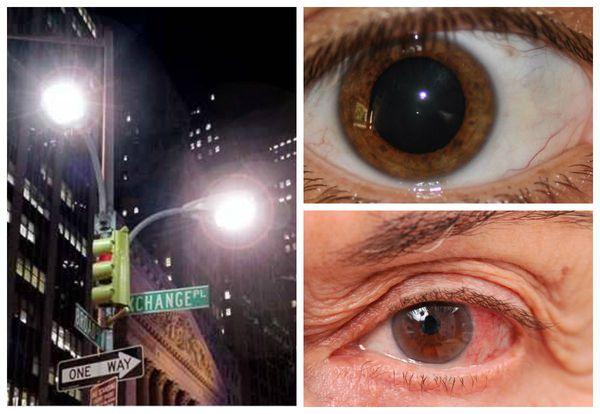 Проявления прогрессирующей глаукомы