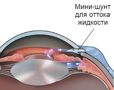 Синустрабекулэктомия