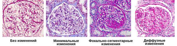 Классификация морфологических изменений почечных клубочков