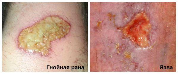Гнойная рана (слева) и язва (справа)