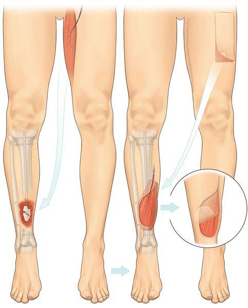 Пластическая операция по устранению раны