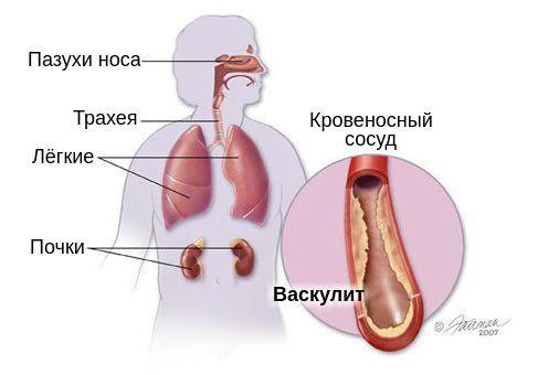 Органы-мишени при гранулематозе Вегенера