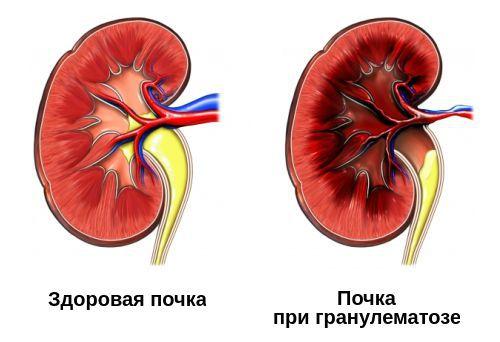 Поражение почек при гранулематозе с полиангиитом
