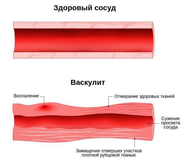 Поражение сосуда при васкулите