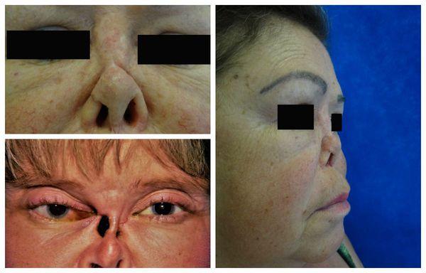 Последствия распада гранулём в полости носа