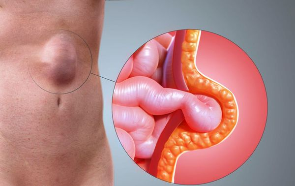 Прорыв апоневроза брюшной стенки и выпадение петли кишечника
