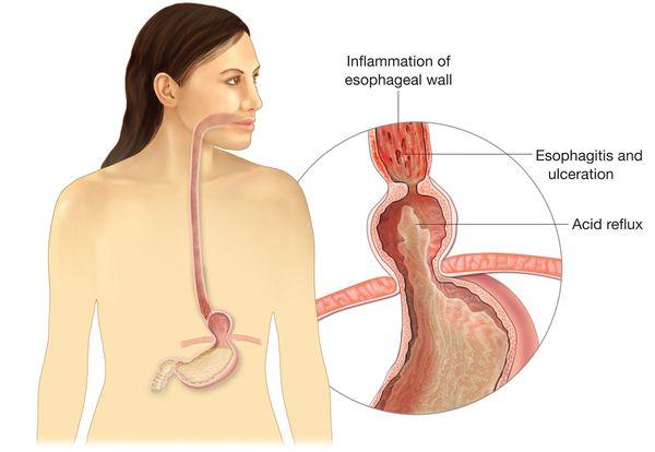 Проникновение пищи из желудка обратно в пищевод