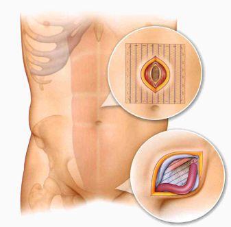 Лечение грыжи с помощью протеза