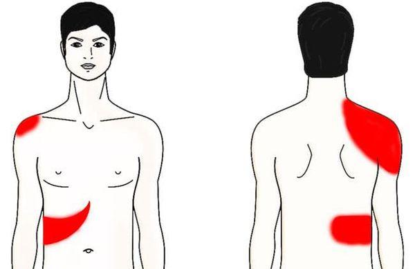 Болевые зоны при хроническом холецистите