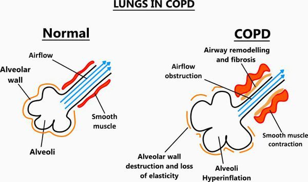 Сужение дыхательных путей при ХОБЛ