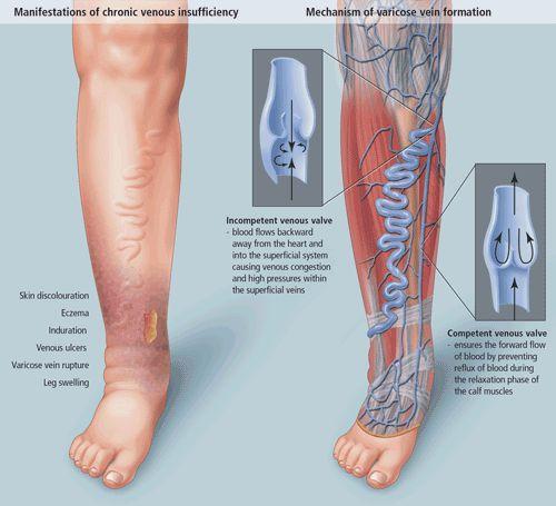 Отток крови при хронической венозной недостаточности