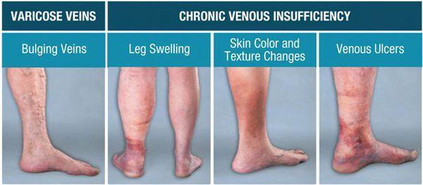 Симптомы хронической венозной недостаточности
