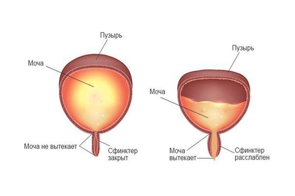 Мочевой пузырь не ощущает, когда он переполнен