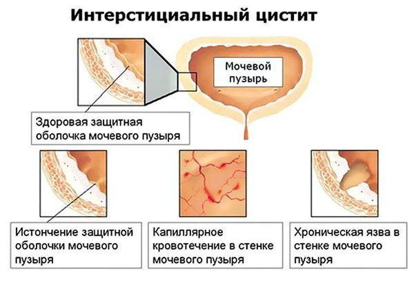 Синдром болезненного мочевого пузыря