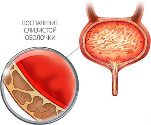 Воспаление в стенке мочевого пузыря