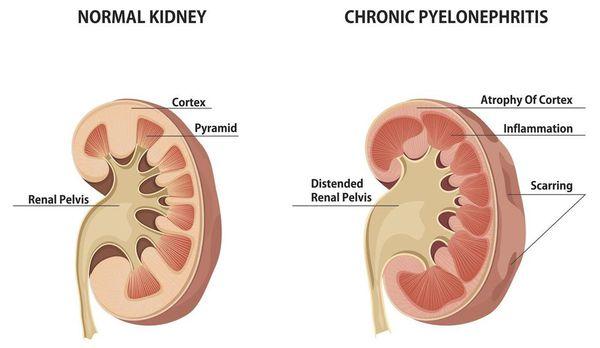 Хроническое воспаление почек