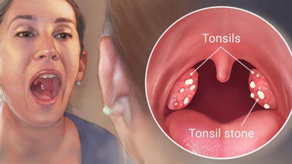 Воспаление нёбных миндалин