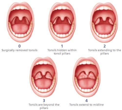 Стадии хронического тонзиллита