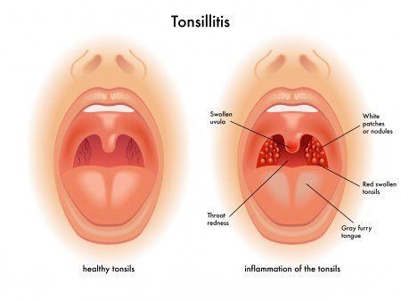 Здоровые миндалины и миндалины при тонзиллите