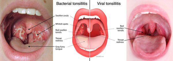 Бактериальный и вирусный тонзиллит