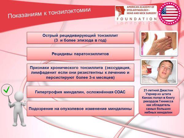 Показания к тонзиллэктомии