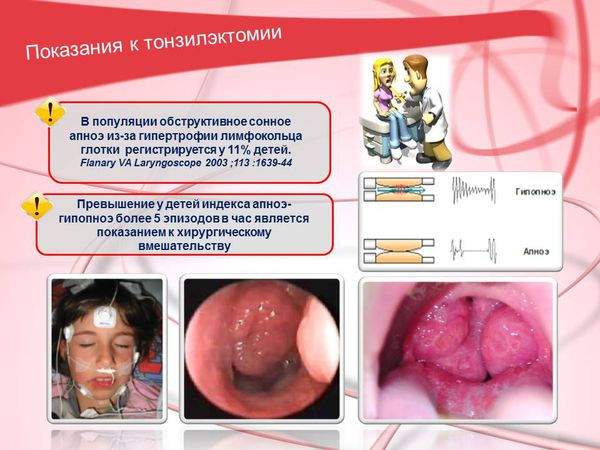 Показания к тонзиллэктомии у детей