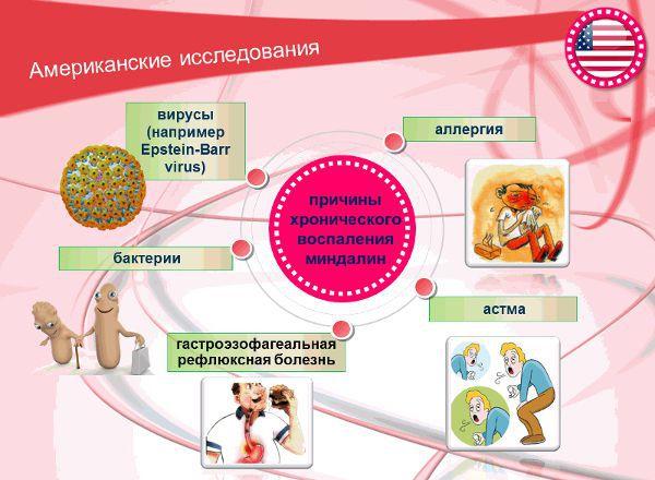 Причины хронического воспаления миндалин