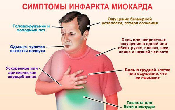 Основные симптомы инфаркта миокарда