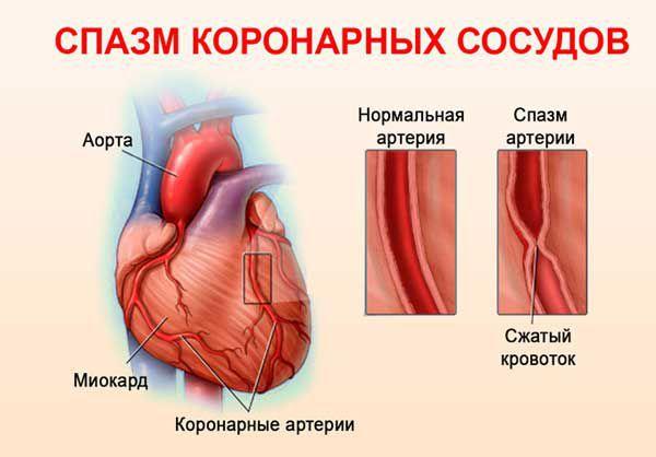 Спазм сосудов коронарной артерии