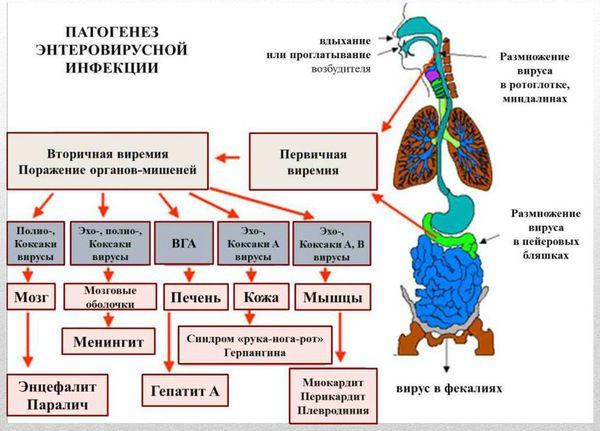 Патогенез энтеровирусной инфекции