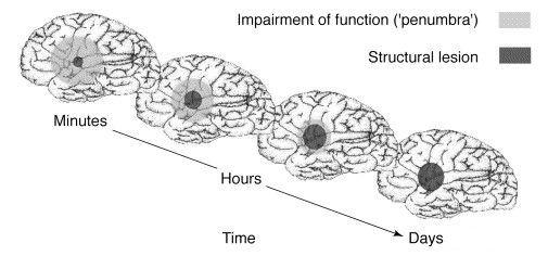 Формирование зоны инфаркта