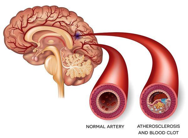 Мозговой атеросклероз
