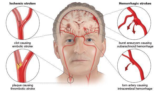 Закупорка и разрыв сосудов головного мозга