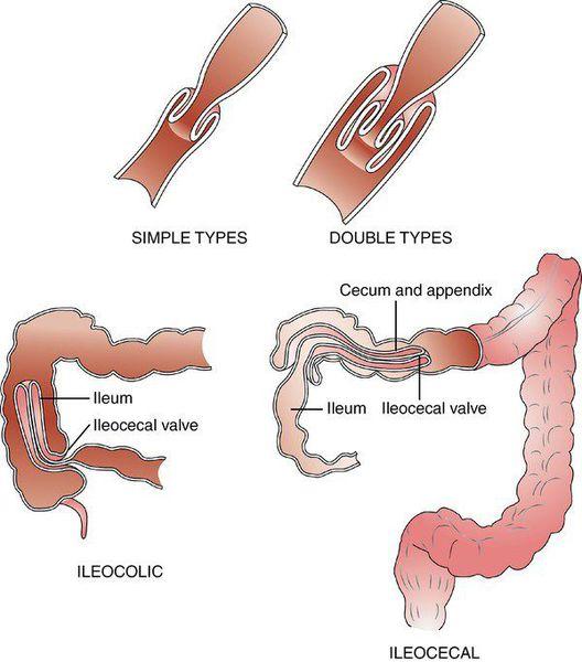 Анатомическая классификация инвагинации кишечника