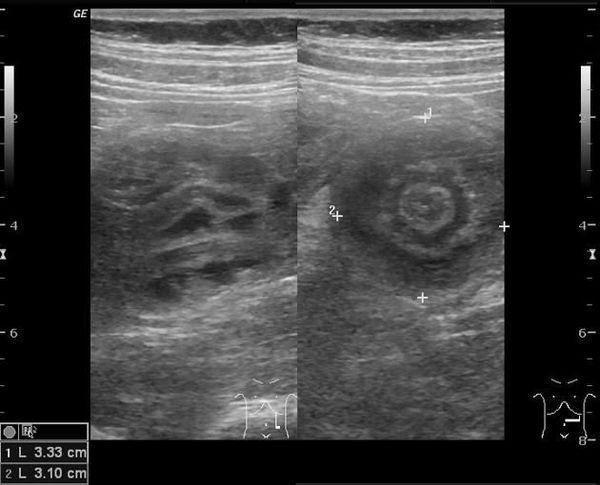 УЗ-признаки инвагинации кишечника