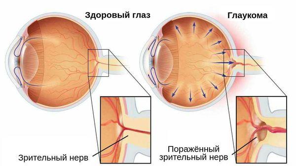 Поражённый зрительный нерв при глаукоме