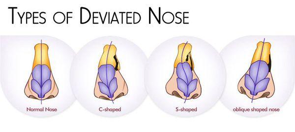 Типы искривления носа