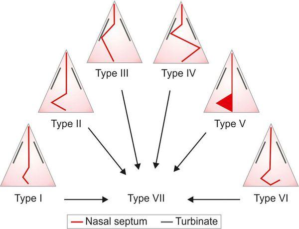 Типы искривления носовой перегородки