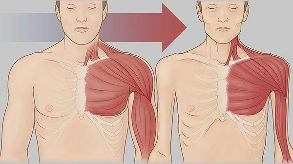 Снижение мышечной массы при кахексии