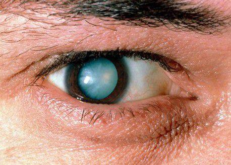 Признак корковой катаракты